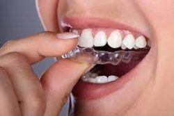 WHAT PAYMENT OPTIONS ARE AVAILABLE FOR BRACES?