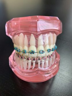 WHAT SHOULD YOU LOOK FOR IN AN ORTHODONTIST OPEN ON SATURDAY?
