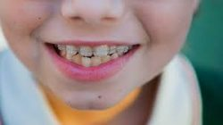 WHAT YOU SHOULD KNOW ABOUT A CHILDREN'S ORTHODONTIST NEAR ME