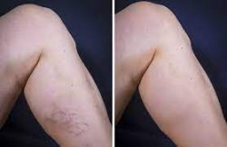 How to Get Rid of Varicose Veins?
