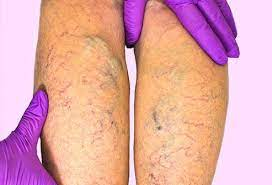 Why do I need to visit a vein clinic if I have venous insufficiency?