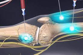 What actually happens during the RF ablation procedure?