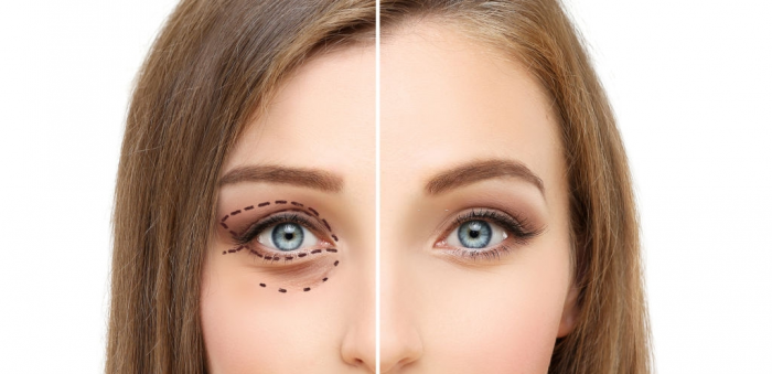 Gregory Casey: Benefits of Eye Cosmetic Surgery