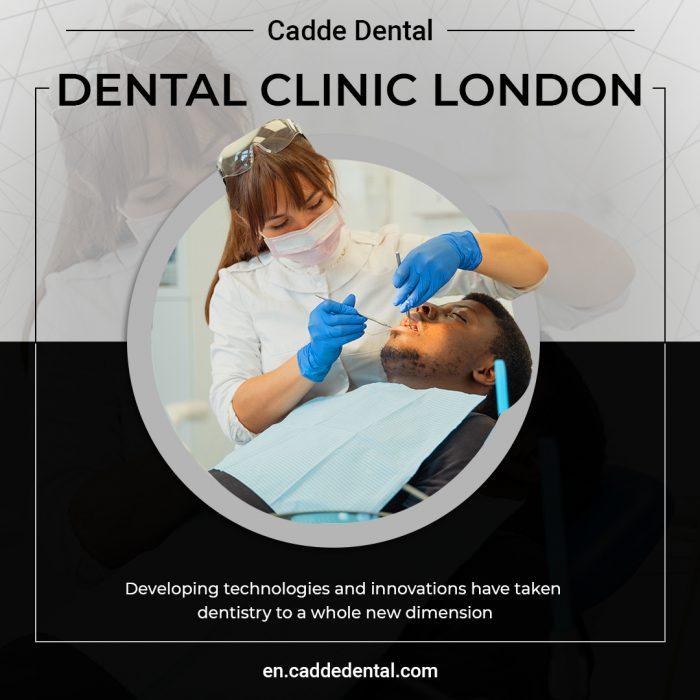 Best Dental Clinic London – Cadde Dental
