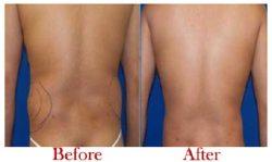 Best Liposuction Surgeon in Delhi | Dr. Vivek Kumar
