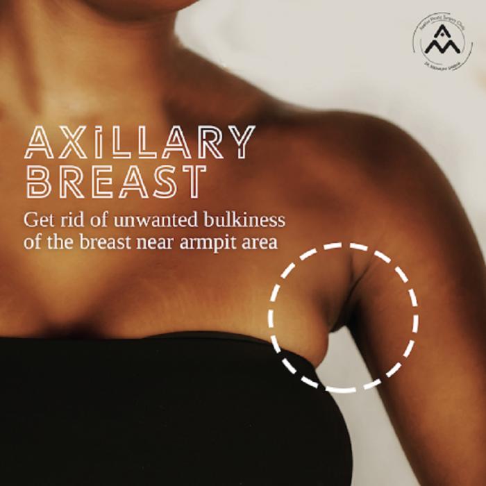 Breast Enlargement Surgery in Delhi