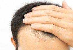 Hair Fall Treatment in Delhi