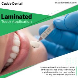 Laminated Teeth Application – Cadde Dental