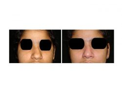 Best Nose Surgery Cost in Delhi | Dr. Vivek Kumar