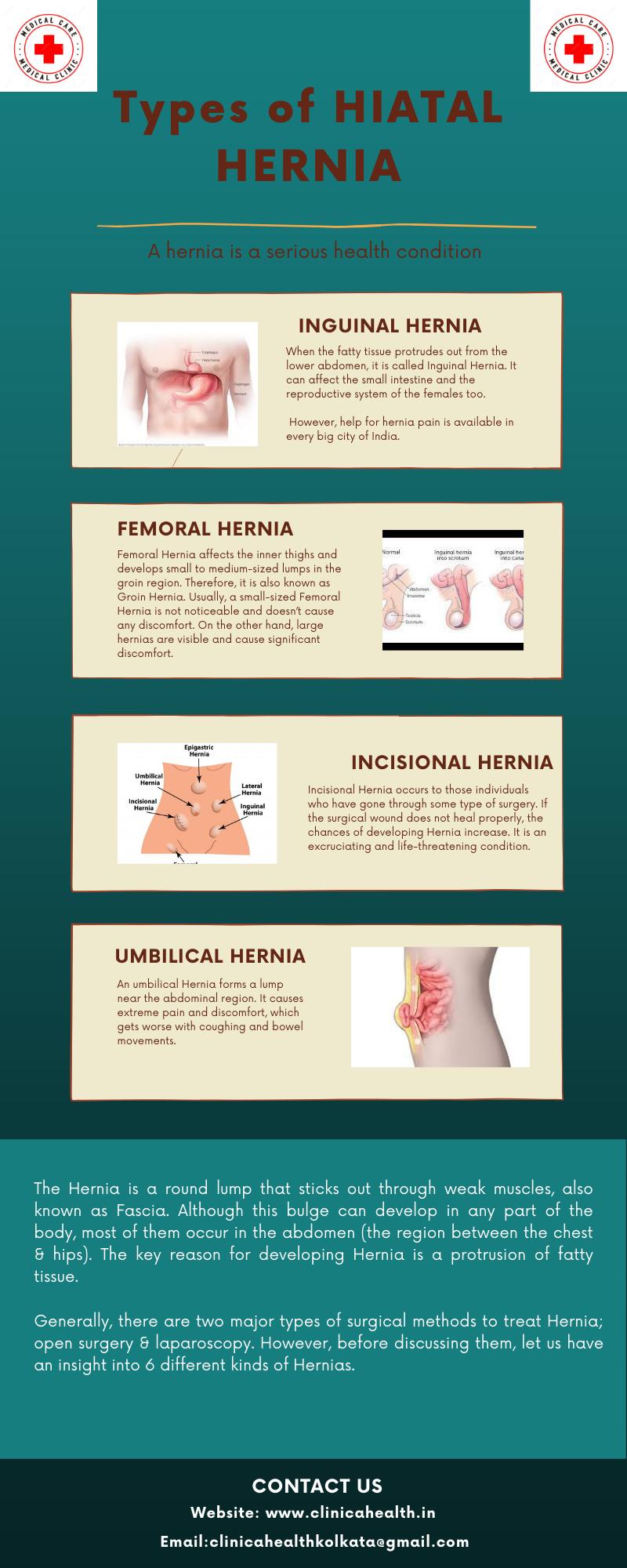 Types of Hiatal Hernia – Clinica Health