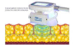 Fat Freezing Cryolipolysis