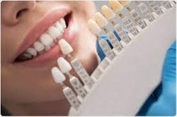 WHAT CAN YOU DO TO TAKE CARE OF PORCELAIN CROWNS?