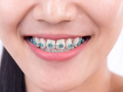 Which Ones Are the Best for White Teeth?