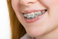FINDING THE CORRECT ORTHODONTIST NEAR ME