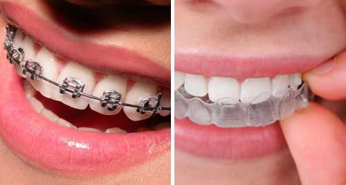 GETTING TREATMENT FROM ORTHODONTIST NEAR ME