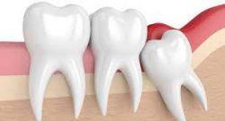 Wisdom Teeth Removal Houston