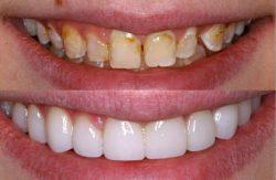 Best Dentist Houston TX