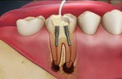 Post and Core Dental Crown For Teeth Restoration