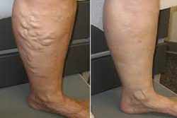 Why do I Need to Find a State-of-the-Art Vein Clinic?