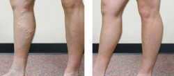 Diagnosis of Vein Disease before Treatment