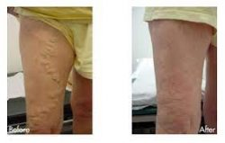 Looking for varicose vein treatment in Houston?