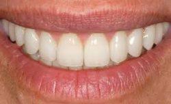 Cosmetic Dentistry Houston TX