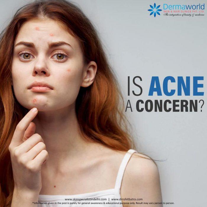 Acne specialist in Delhi