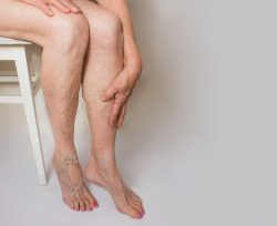 Advanced Spider and Varicose Vein Treatment Clinic