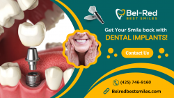 Smile Confidently with Dental Implants Treatment!