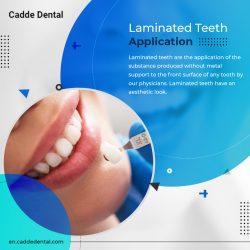 Best Quality Laminated Teeth Application – Cadde Dental