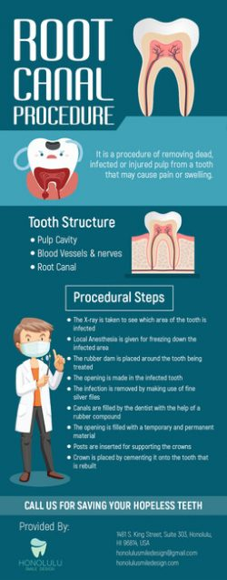 Save Your Hopeless Teeth with Root Canal Therapy from Honolulu Smile Design