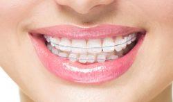 Braces Teeth Alignment Treatments