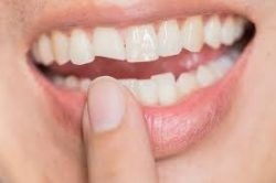 Broken Tooth Treatment and Repair