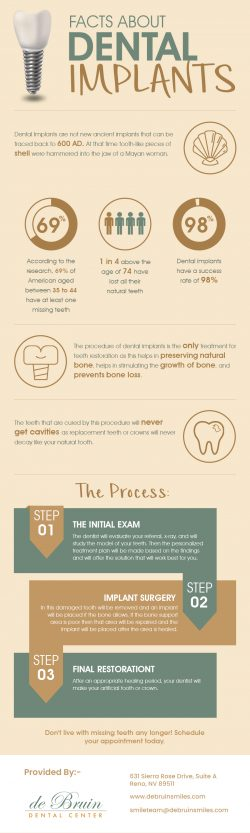 de Bruin Dental Center – Quality Implant Dentistry in Reno, NV