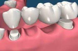 Dental Bridges in Houston