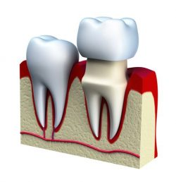 Dental Crown Houston