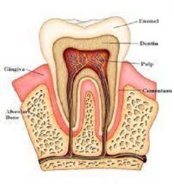 Emergency Root Canal