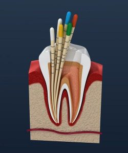 Emergency Root Canal Near Me