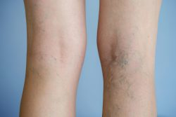 How to Get Rid of Varicose Vein?