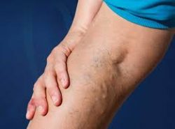 How do I know if I have chronic venous insufficiency?