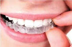 Invisalign Orthodontist Near Sunny Isles Beach