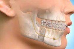 Oral And Maxillofacial Surgeon   Gregory Casey