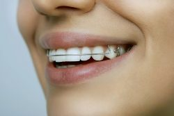 What Is The Clear Retainer Cost?