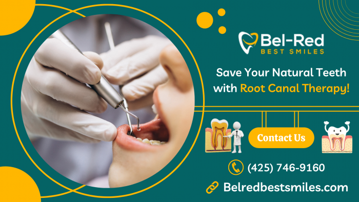 Get Safe & Effective Root Canal Therapy!