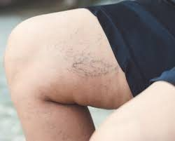 You have discolored patches of skin on your legs
