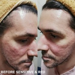 Best Treatment For Facial Scars In Singapore