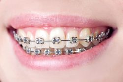 The Best Teeth Straightening Options For Adults