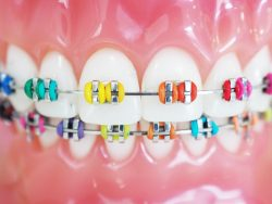 What Are The Best Braces Color?