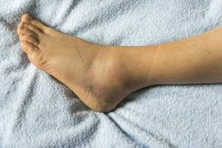 Your notice swelling on one leg or ankle