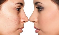 Scar Removal Treatment – Orange Clinic